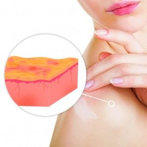 dry skin from hard water